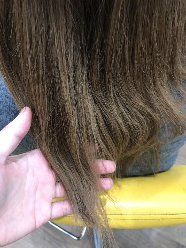 髪の毛が伸びなくなってきたけど何故?AGAが必要な場合とそうでない場合