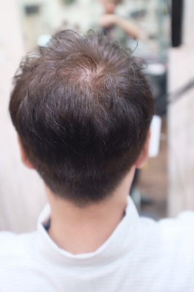 〈男性にオススメ!〉アールカラー、ヒカリナス、酵素テクノロジー、オキシロンを組み合わせて作る【育毛カラー】