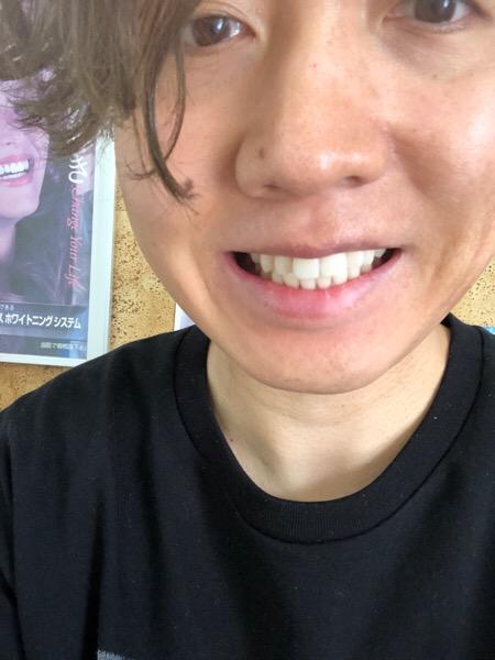 歯のケアに今まで〇〇してきました